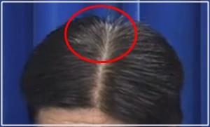 加藤勝信の白髪