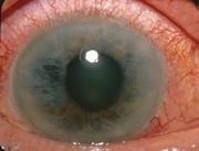 緑内障の目